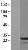 NBL1-16693 - transgelin 2 Lysate