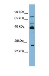 NBP1-57678 - Transglutaminase-3 (TGM3)