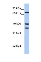 NBP1-54329 - Transglutaminase-5 (TGM5)
