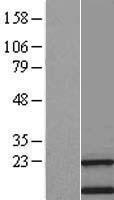 NBL1-17012 - transmembrane protein 138 Lysate