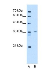 NBP1-57612 - Tropomyosin-2 (TPM2)