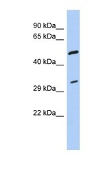 NBP1-57472 - Tropomyosin-3 (TPM3)