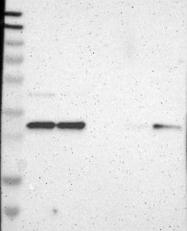 NBP1-87382 - Tropomyosin-3 (TPM3)