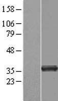 NBL1-17220 - tropomyosin-3 Lysate