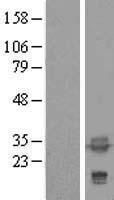 NBL1-17221 - tropomyosin-4 Lysate