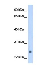 NBP1-57842 - Fast skeletal muscle Troponin I