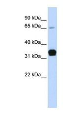 NBP1-54820 - Skeletal muscle Troponin T