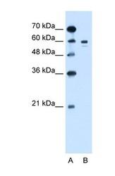 NBP1-69516 - Tyrosinase (TYR)