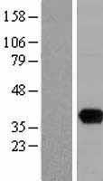 NBL1-17620 - uracil-DNA glycosylase Lysate