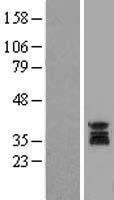 NBL1-17621 - uracil-DNA glycosylase Lysate
