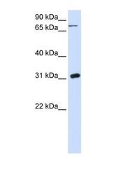 NBP1-55354 - Uridine phosphorylase 1 (UPP1)