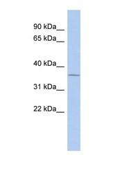 NBP1-55355 - Uridine phosphorylase 1 (UPP1)