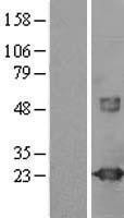 NBL1-17764 - visinin-like 1 Lysate