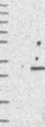 NBP1-86722 - WDYHV1