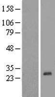 NBL1-18197 - zinc finger protein 581 Lysate