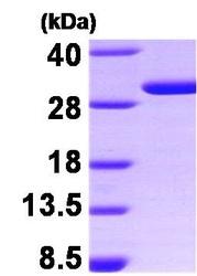 NBP1-30172 - 14-3-3 protein sigma / SFN