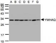 NBP1-31537 - 14-3-3 protein theta