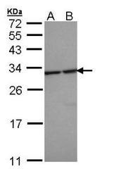 NBP1-32695 - 14-3-3 protein epsilon