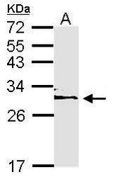 NBP1-33554 - 14-3-3 protein epsilon