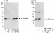NBP1-71901 - 14-3-3 protein theta