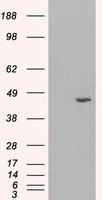 NB600-982 - 3-beta-HSD1 / HSD3B1