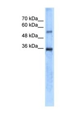 NBP1-54947 - Carbonic anhydrase 8