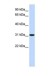 NBP1-54955 - Carbonic anhydrase 8