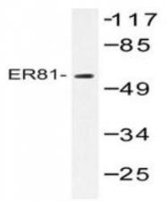 NBP1-19679 - ETV1 / ER81