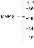 NB100-91880 - MMP-8