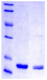 PA509X - Hepatitis B X Protein / HBx