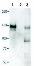 PAB0140 - LRIG1