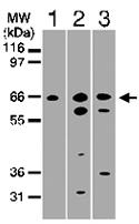 PAB0156 - TNFRSF21 / Death receptor 6 (DR6)
