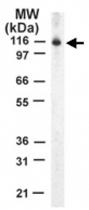 PAB0168 - STAT2