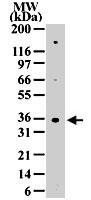 PAB0175 - CD185 / CXCR5