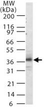 PAB0178 - CD181 / IL8RA