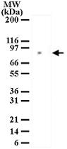 PAB0179 - MRE11