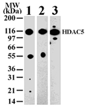 PAB0182 - HDAC5
