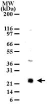 PAB0184 - LY86 / MD-1