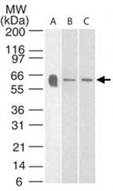 PAB0187 - Serotonin receptor 3A (HTR3A)