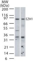 PAB0192 - EZH1