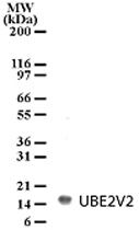 PAB0193 - UBE2V2