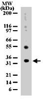 PAB0194 - Uracil-DNA glycosylase (UNG)