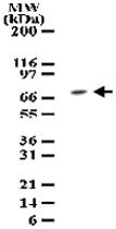 PAB0196 - TAK1 / MAP3K7