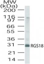 PAB0228 - RGS18