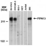 PAB0256 - PTPN13