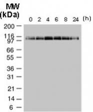 PAB0267 - NALP2