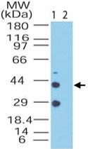 PAB0289 - NPY receptor 2 / NPY2R