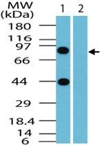 PAB0303 - BCLAF1 / BTF