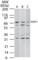 PAB0343 - SENP1