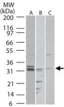 PAB0358 - Nogo 66 receptor